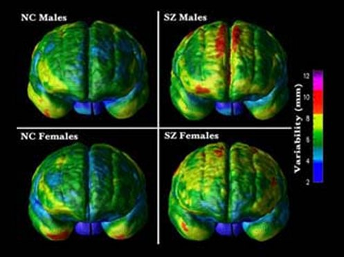 Schizophrenic brain and normal brain both male and female.